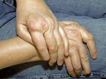 Polyarthrite rhumatoïde: Découvrez ses symptômes et son évolution