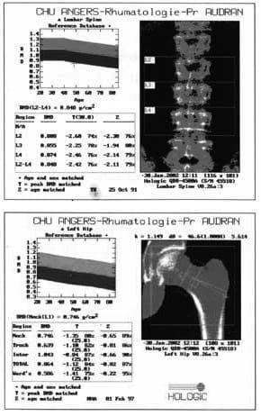 Result of bone densitometry measuring bone mineral density