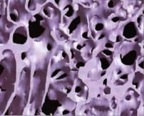 Fig 1 : Normal bone tissue