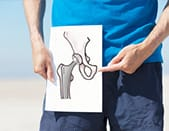 Why a hip replacement?