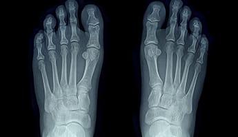 arthrose dans les pieds