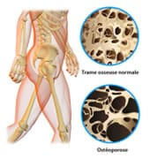 Mechanisms involved in osteoporosis