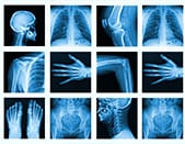 What do the medical imaging examinations show ...