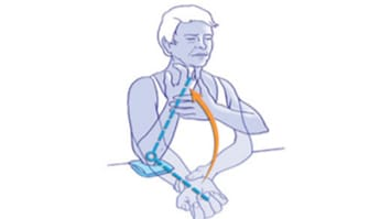 joint exercises osteoarthritis of the elbow